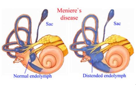 chẩn đoán bệnh Meniere